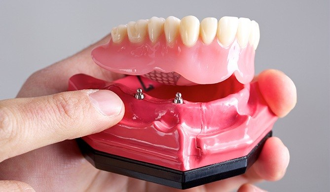 Model all on 4 dental implant supported denture