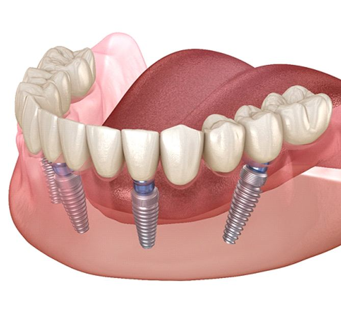 A diagram of All-on-4 dental implants.