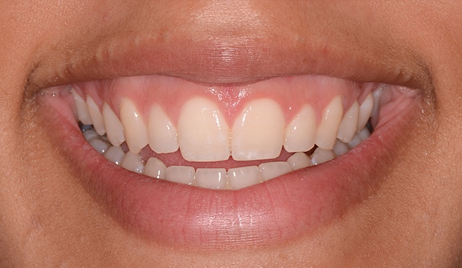Gorgous smile after aesthetic gum recontouring treatment