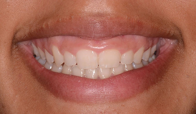 Stubby teeth before aesthetic gum recontouring treatment