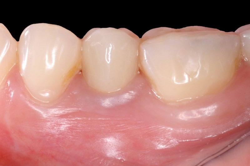 Dental implant supported dental crown seamlessly integrated into smile