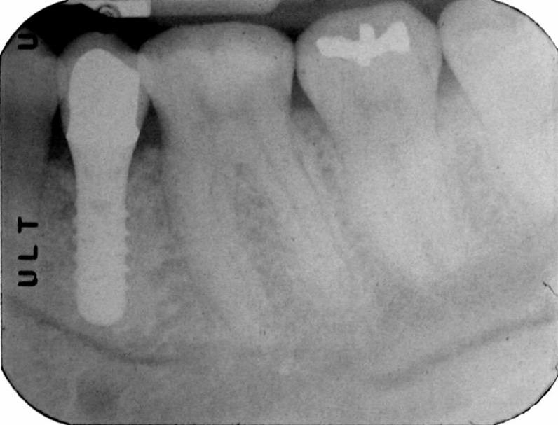 X-ray of dental implant supported dental crown after 3 years