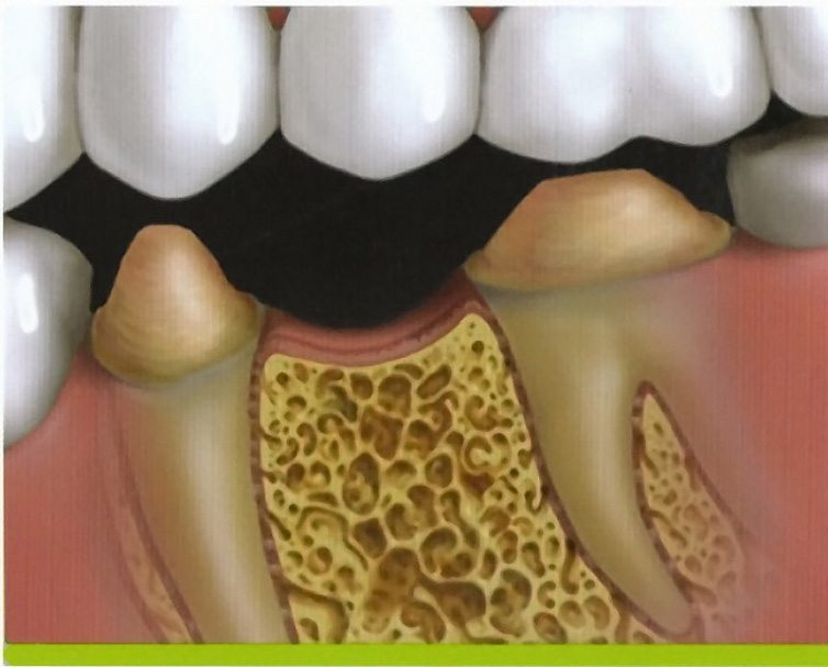 Animated rending of teeth prepared for traditional fixed bridge