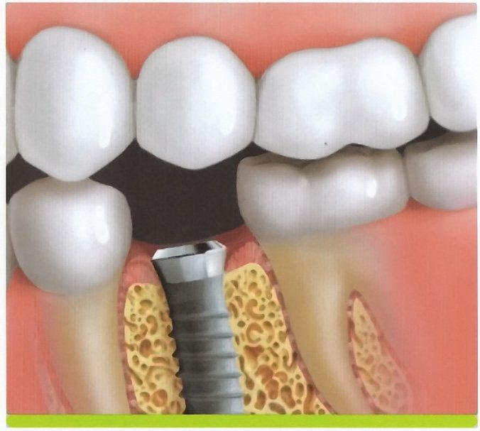 Animated image of smile after dental implant post is placeD