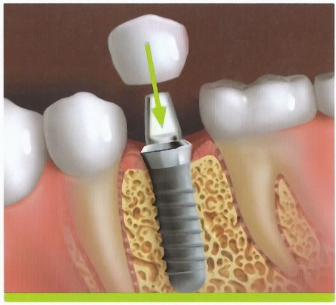 Animated dental crown attached to dental implant post