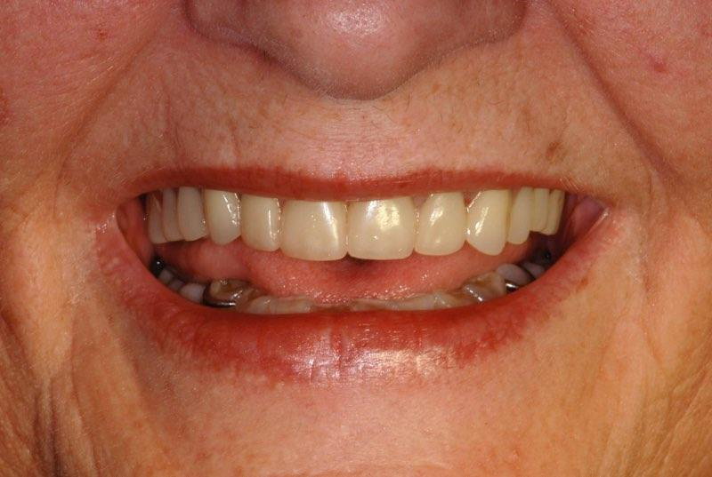 Smile after denture placement