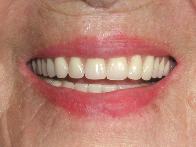 Smile with dental implant supported denture