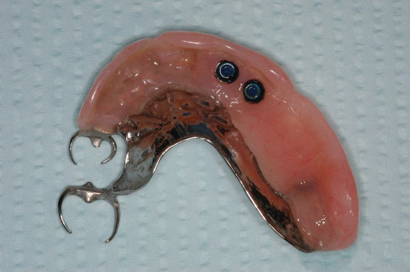 Partial denture with buttons to attach to dental implants