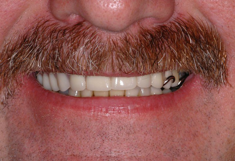 Smile after partial denture is placed