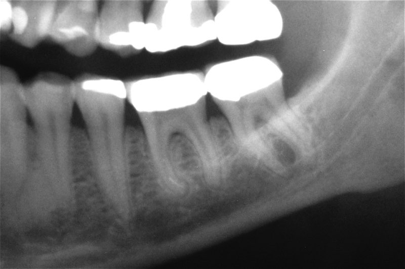 X-ray of severely damaged teeth