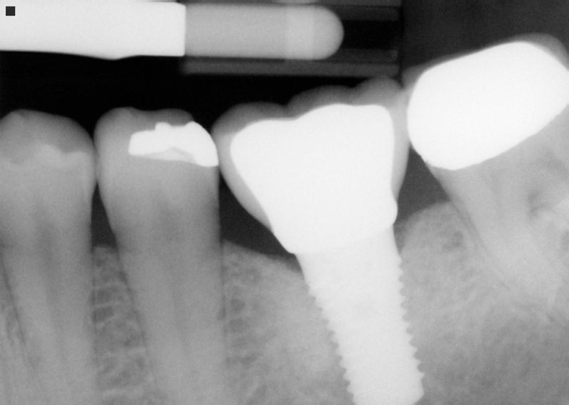 X-ray of smile after dental implant and dental crown placement