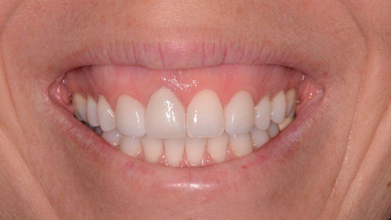 Smiling patient after dental implant tooth replacement