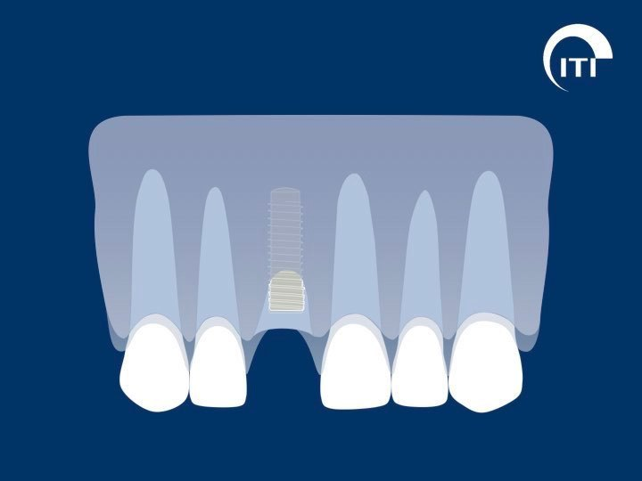 Animated smile with dental implant post