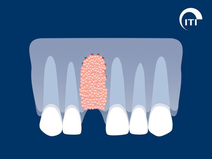 Animated smile with bone graft