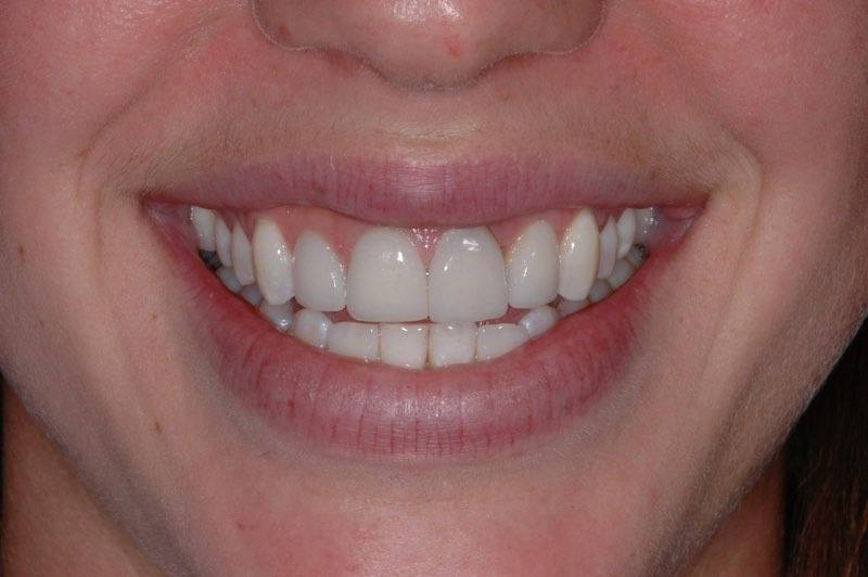 Smile with damaged front tooth