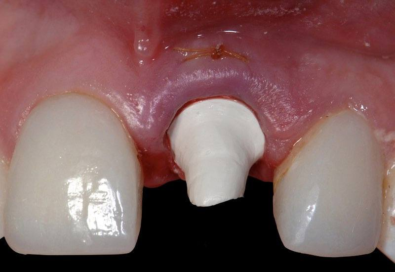 Smile with dental implant and temporary abutment in place