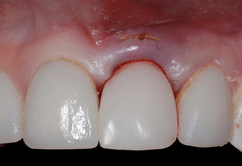 Smile with temporary dental crown tooth replacement