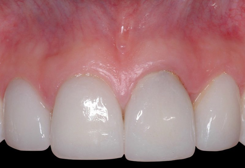 Smile with damaged front tooth and gum recession