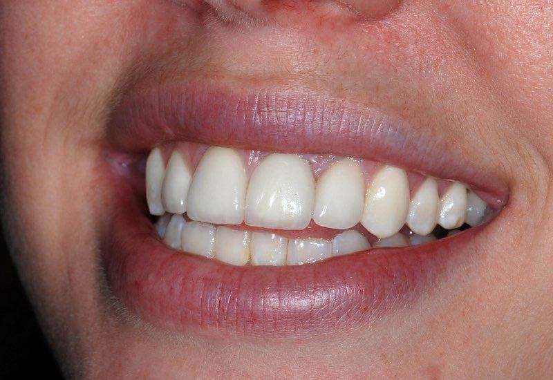 Full smile after dental implant tooth replacement