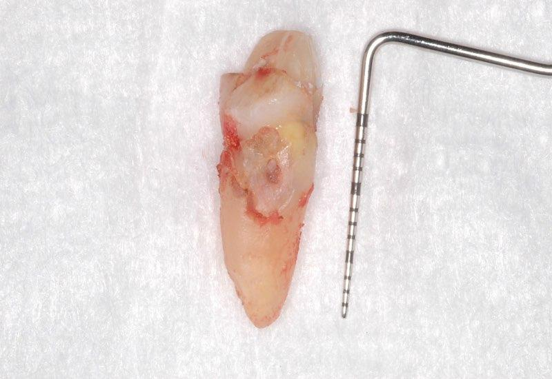 Damaged tooth after extraction