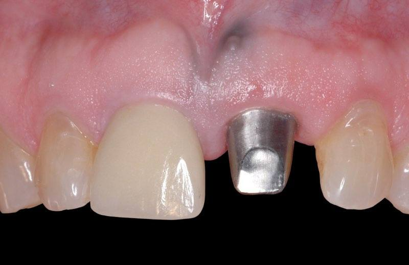 Smile with custom abutment post visible