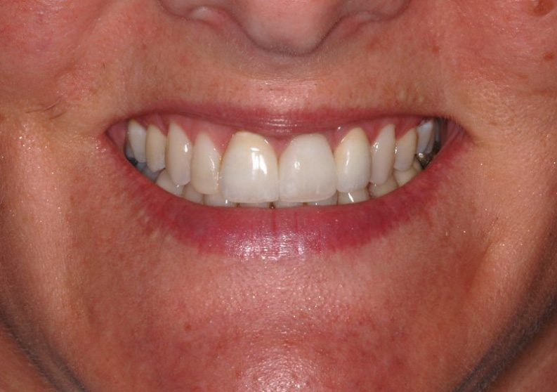 Patient's full smile after dental implant tooth replacement