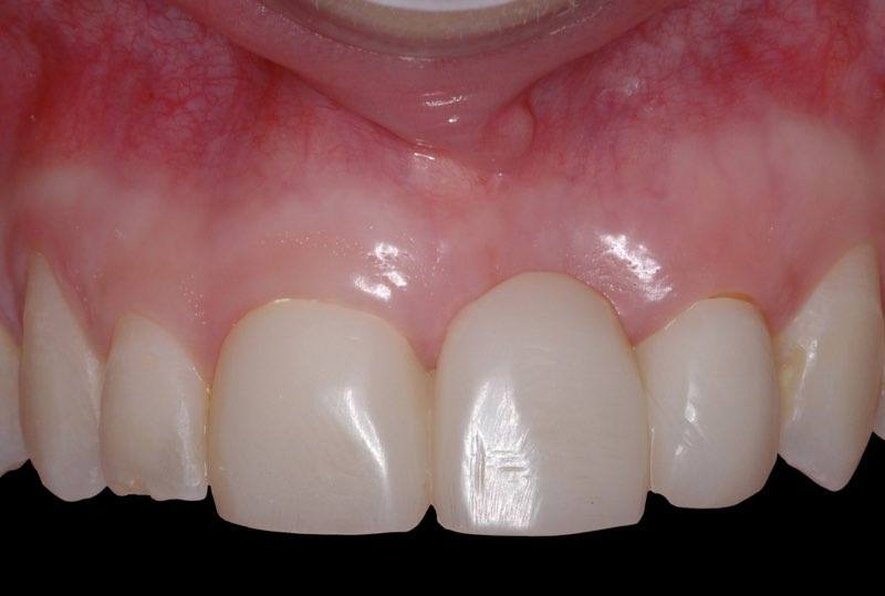 Smile with temporary bridge on the day of dental implant placement surgery