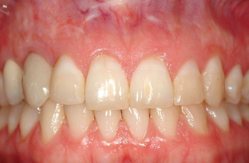 Smile two years after dental implant tooth replacement