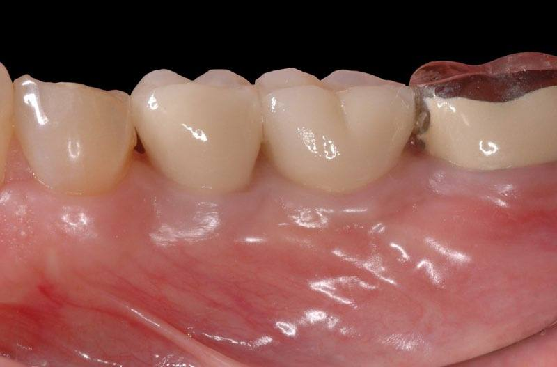 Replacement teeth in place attached to dental implants
