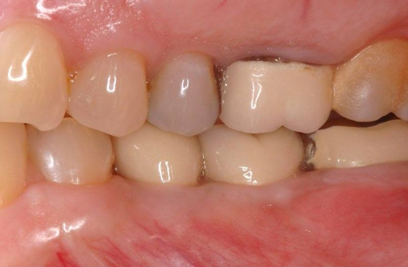 Full smile with dental crowns attached to dental implant posts