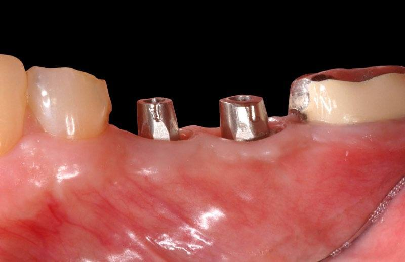 Dental implant abutments visible above the gum line