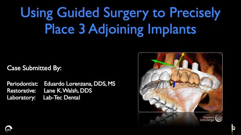 3 D surgical guide for precise dental implant placement