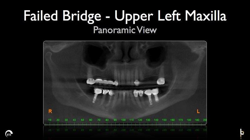X-ray of smile with failed dental bridge