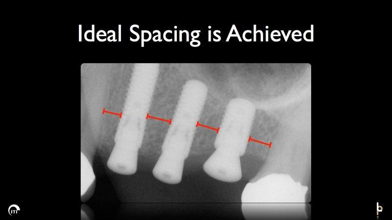 X-ray showing ideal spacing between dental implant posts