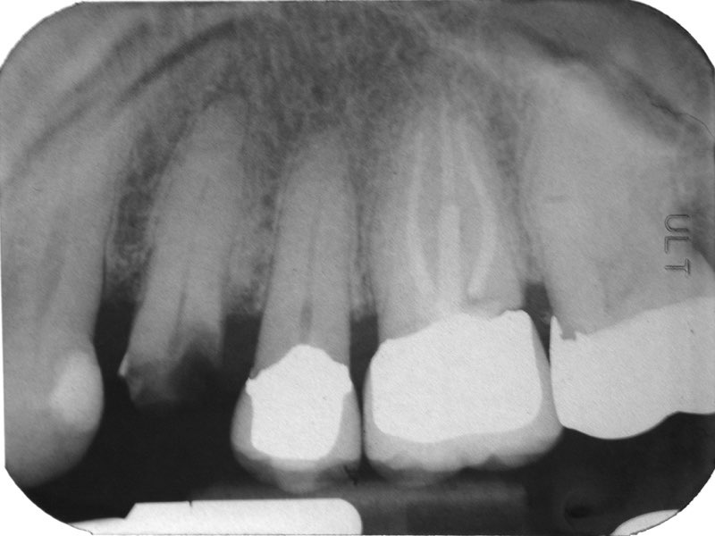 X-ray of fractured tooth