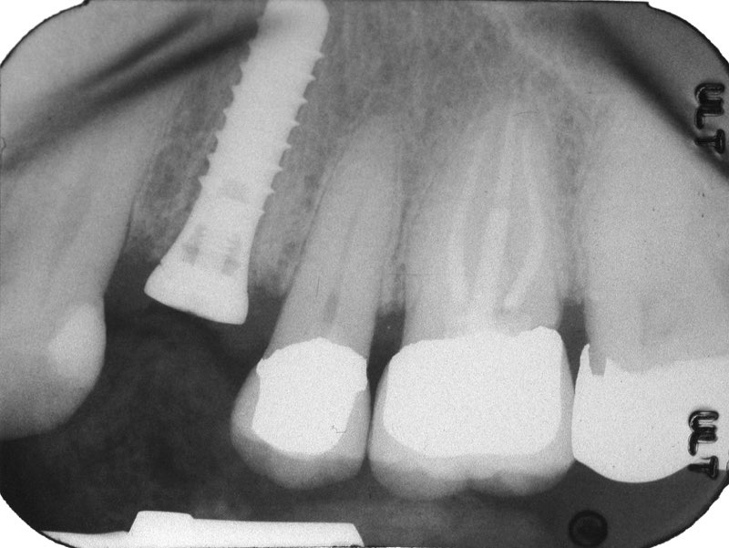 X-ray of smile with dental implant post