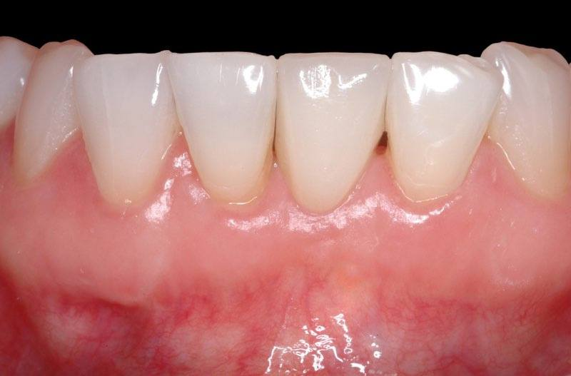 Flawless smile after dental implant tooth replacement