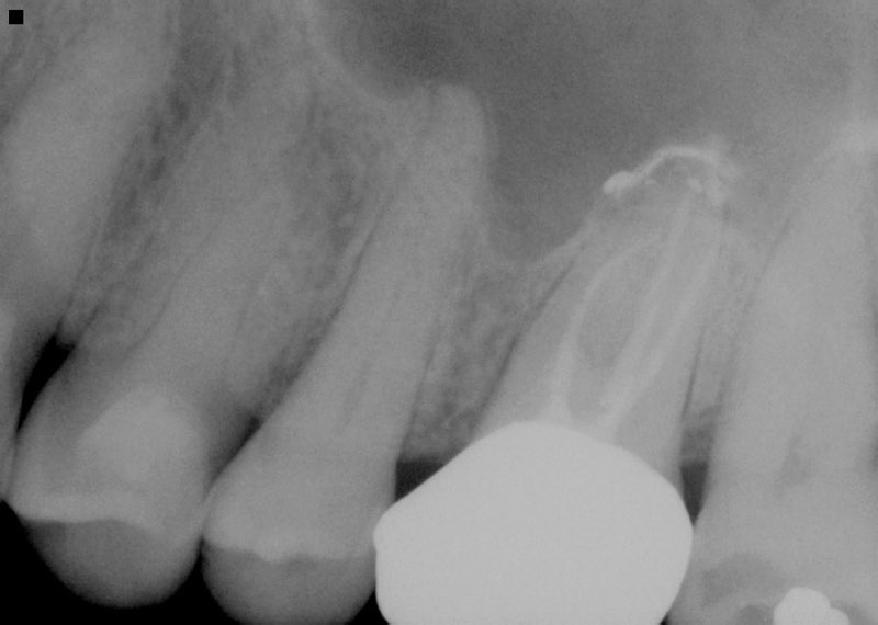 X-ray of tooth with extensive damage
