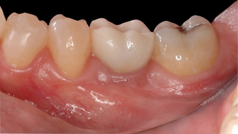 Custom dental crown in place over dental implant