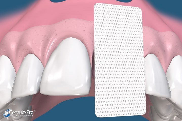 Animated smile with cytoplast membrane
