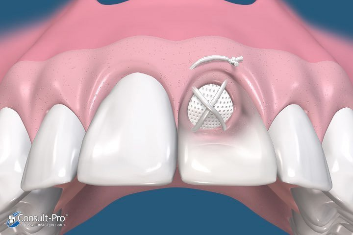 Animated rendering of smile with membrane in place