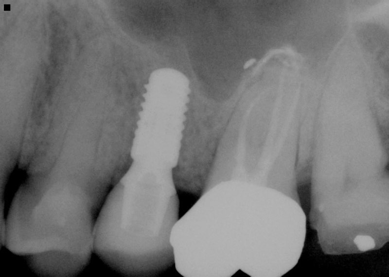 X-ray of smile after completed dental implant tooth replacement