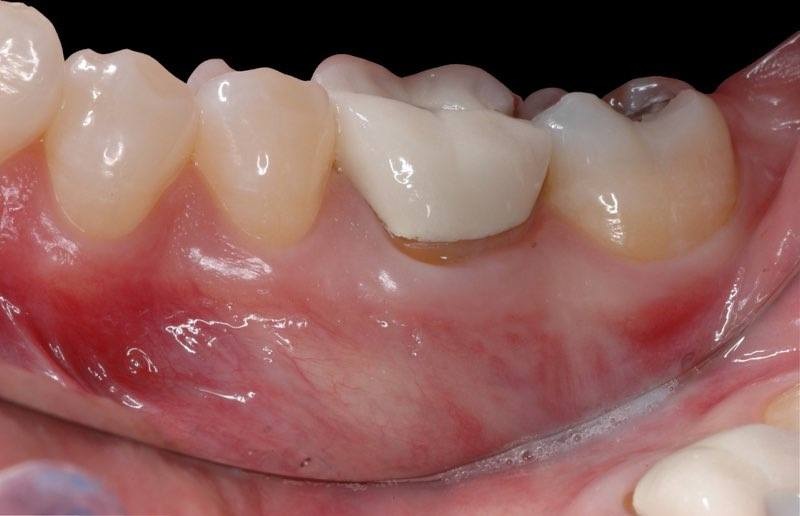 Smile with severely damaged back tooth