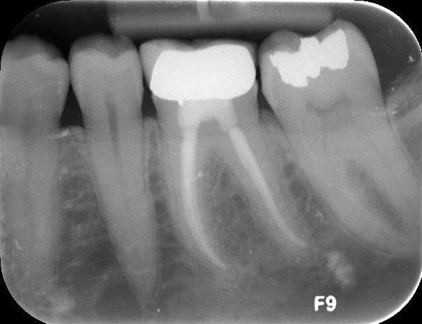 X-ray of damaged back tooth
