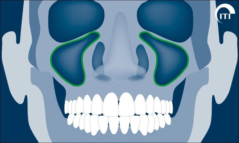 Animated rendering showing the right and left sinus