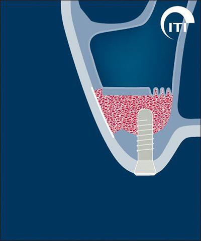 Animated rendering of dental implant post placed into grafted tissue