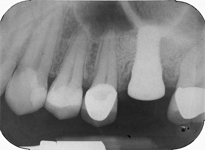 X-ray of dental implant in jawbone