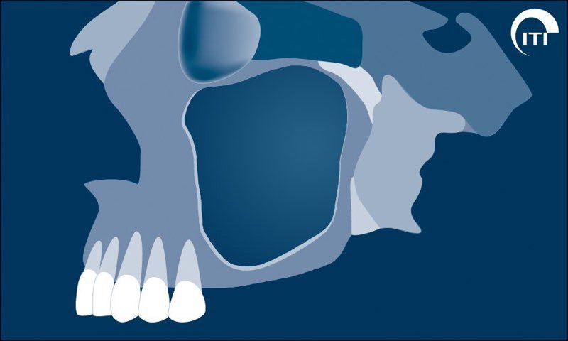 Animated rendering showing sinus expansion with missing molars