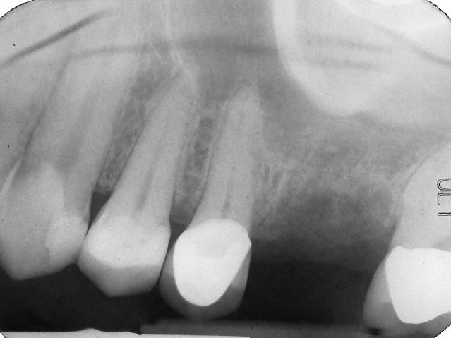 X-ray of smile with missing tooth and lack of supportive bone tissue