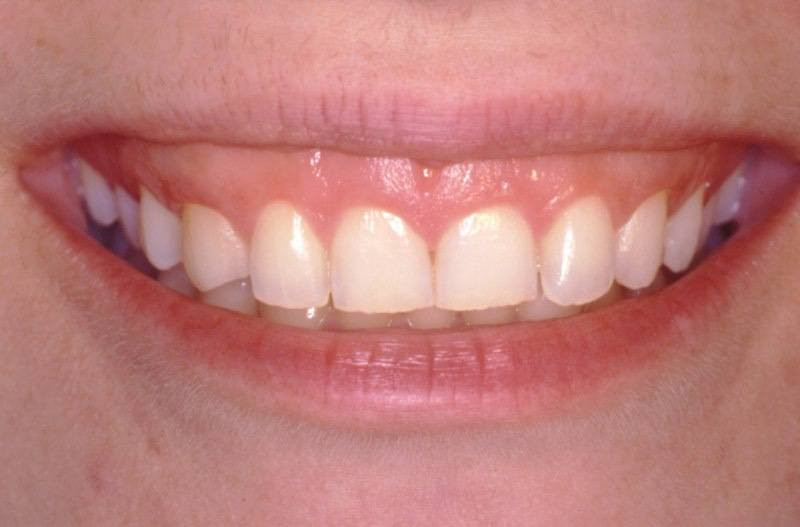 Smile before aesthetic gum recontouring